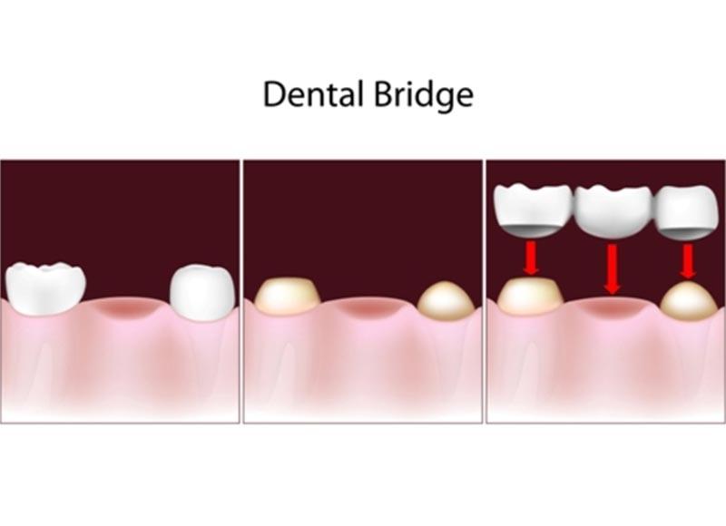 dental bridges in palm beach gardens