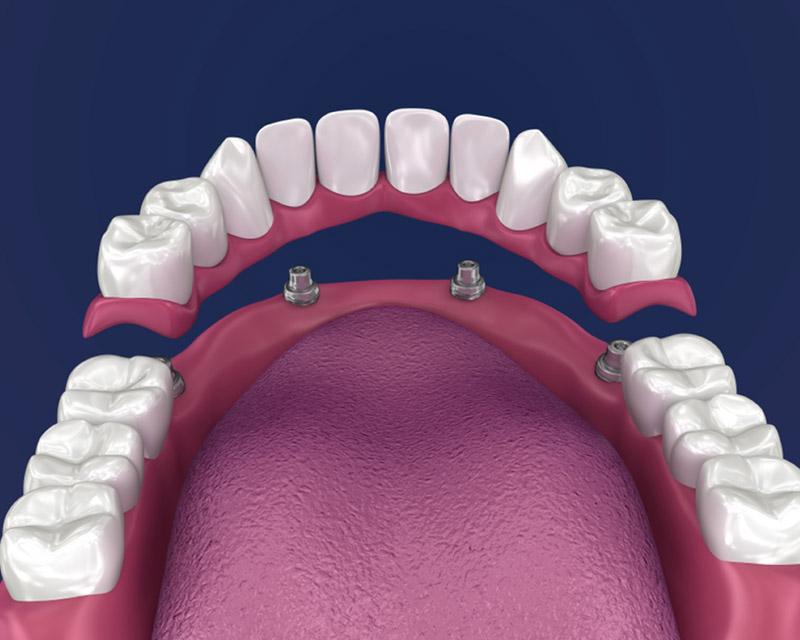 dental implants in palm beach gardens