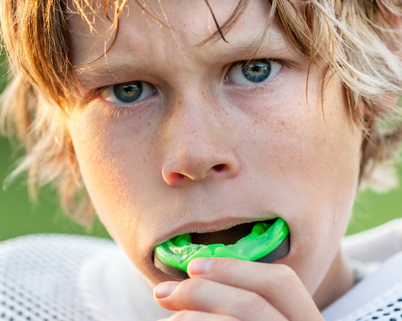 mouth guards in palm beach gardens