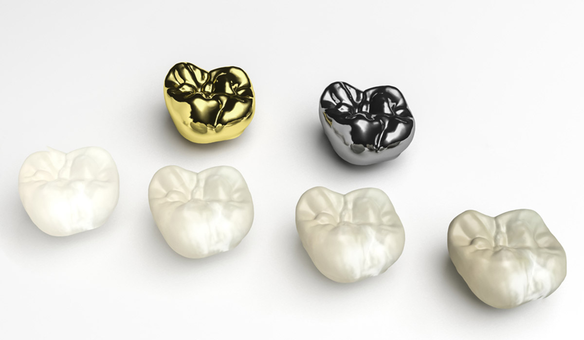 how to take care of new dental crowns