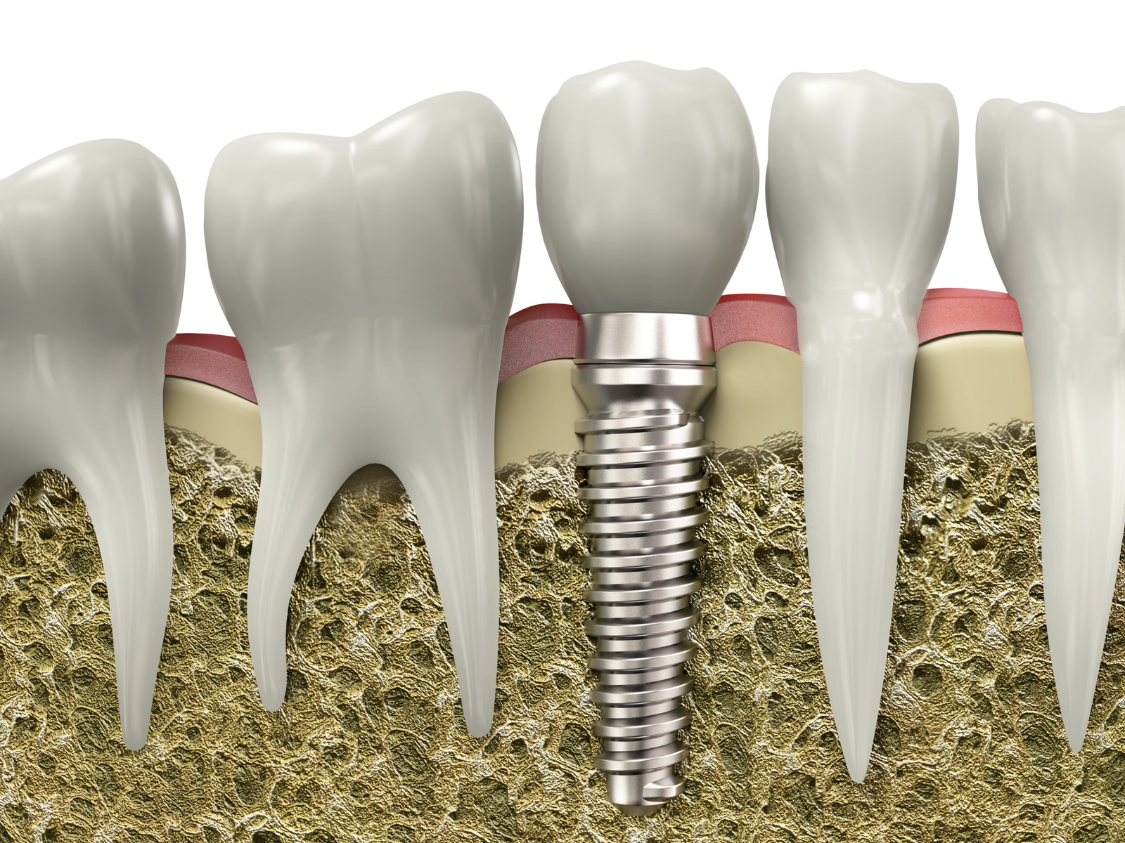 Solving Tooth Loss With Dental Implants