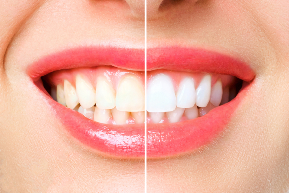 is professional teeth whitening right for you