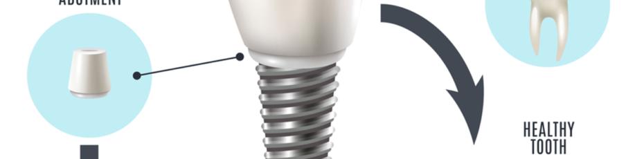 do dental implants last a lifetime